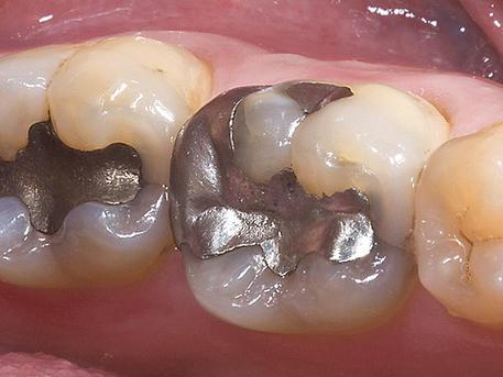 Kép: evolva dental